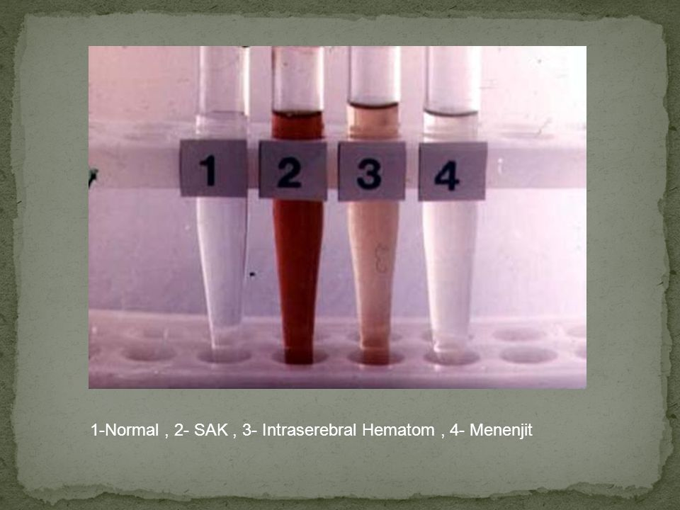 1-Normal, 2- SAK, 3- Intraserebral Hematom, 4- Menenjit