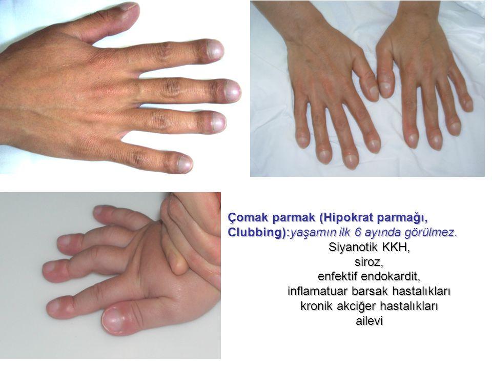 Çomak parmak (Hipokrat parmağı, Clubbing):yaşamın ilk 6 ayında görülmez. Siyanotik KKH, siroz, enfektif endokardit, inflamatuar barsak hastalıkları kr
