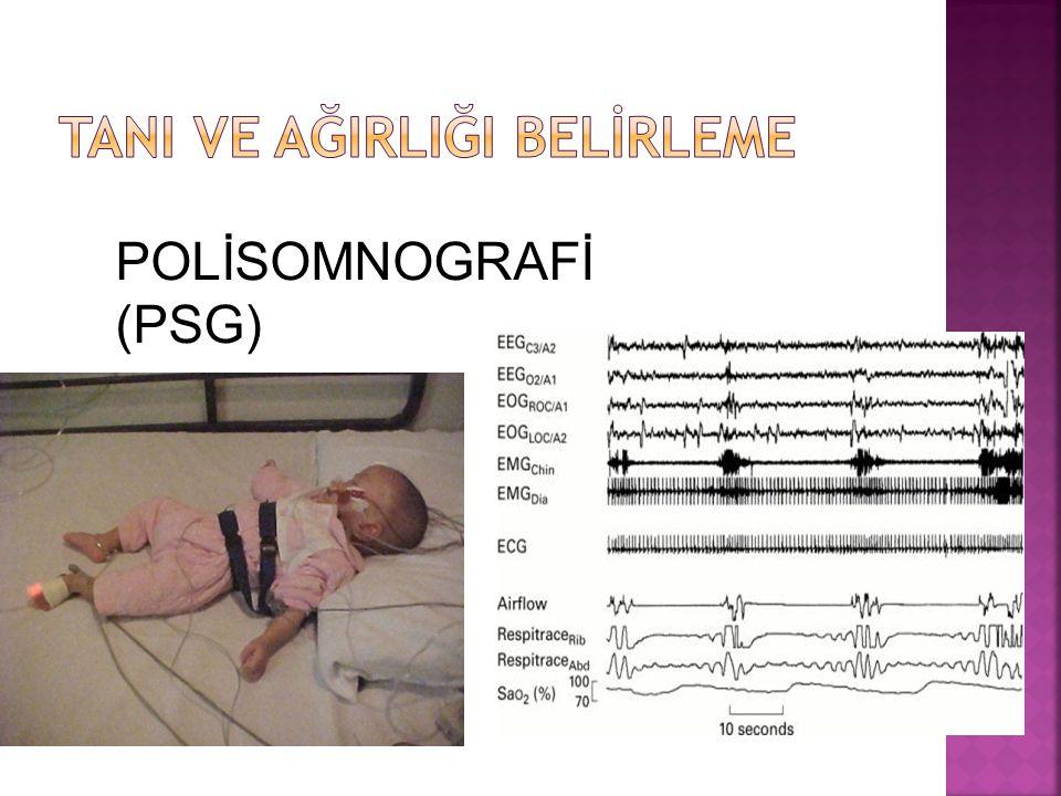 POLİSOMNOGRAFİ (PSG)