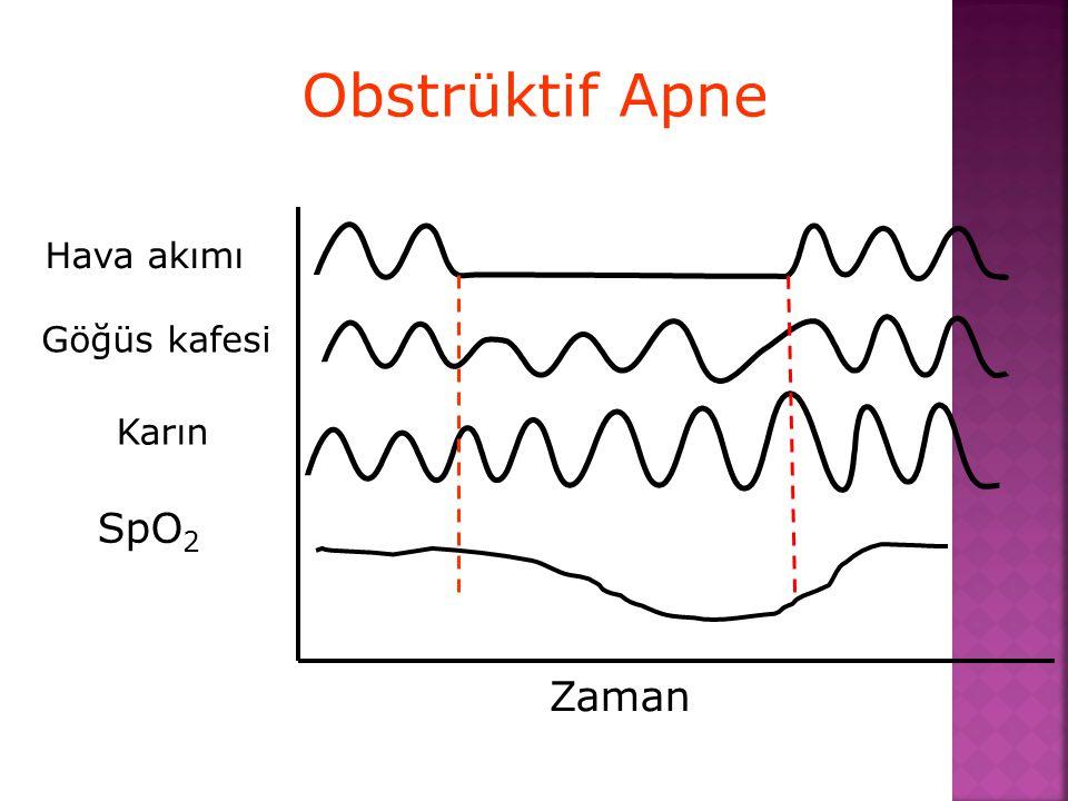 Obstrüktif Apne SpO 2 Hava akımı Göğüs kafesi Karın Zaman