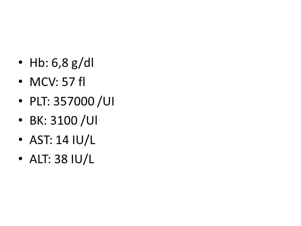 Hb: 6,8 g/dl MCV: 57 fl PLT: 357000 /UI BK: 3100 /Ul AST: 14 IU/L ALT: 38 IU/L