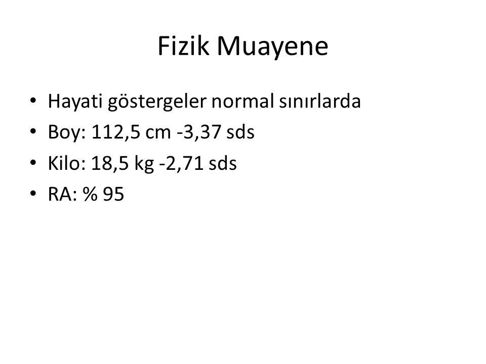 Fizik Muayene Hayati göstergeler normal sınırlarda Boy: 112,5 cm -3,37 sds Kilo: 18,5 kg -2,71 sds RA: % 95