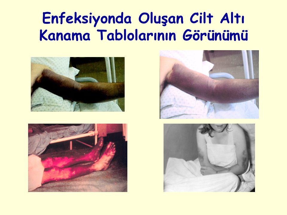 Enfeksiyonda Oluşan Cilt Altı Kanama Tablolarının Görünümü
