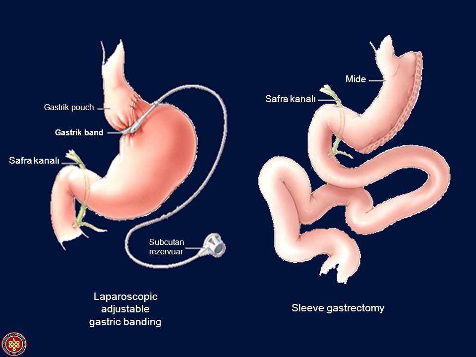 Laparoscopic adjustable gastric banding Sleeve gastrectomy Gastrik pouch Gastrik band Safra kanalı Subcutan rezervuar Mide Safra kanalı