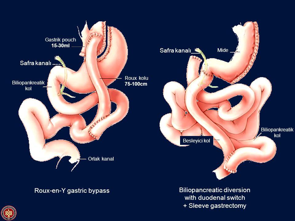 Roux-en-Y gastric bypass Biliopancreatic diversion with duodenal switch + Sleeve gastrectomy Biliopankreatik kol Gastrik pouch 15-30ml Safra kanalı Ro