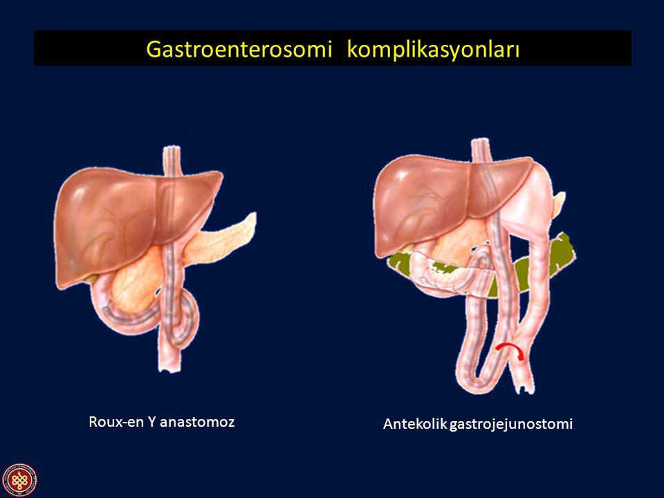 Gastroenterosomi komplikasyonları Anastomoz kaçağı Peritonit ve septik şok nedeniyle fatal olabilir Postgastrektomi sendromu - Postvagotomi diyare İnc