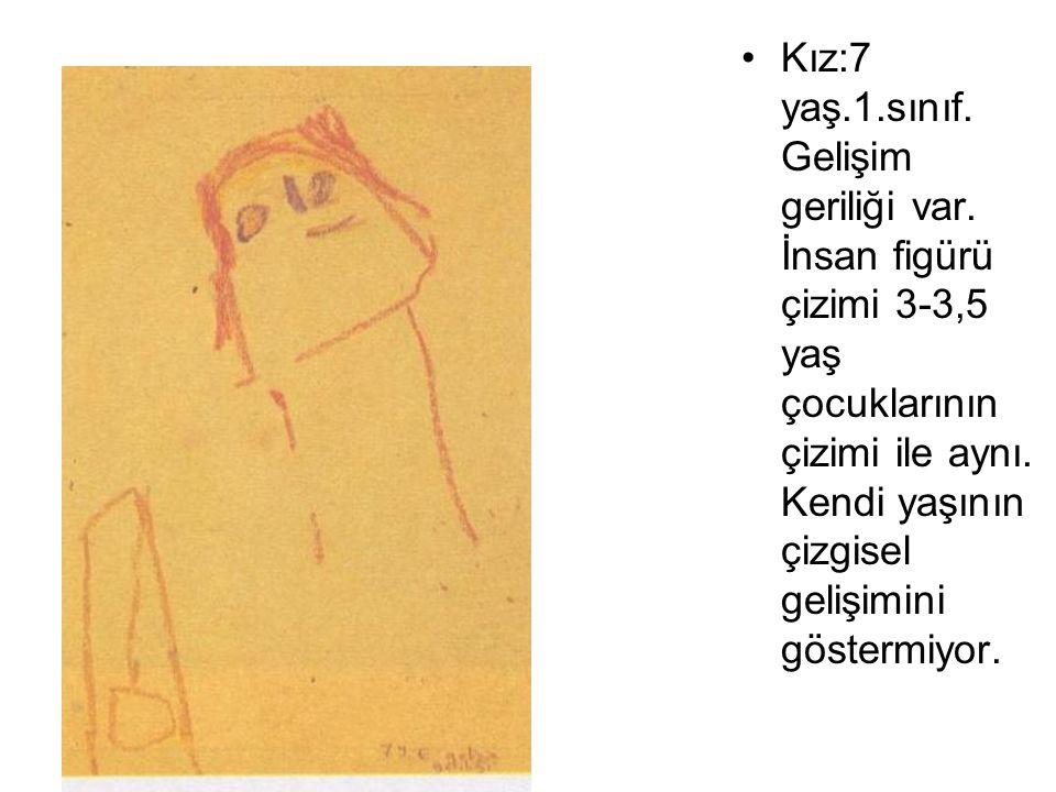 Kız:7 yaş.1.sınıf. Gelişim geriliği var. İnsan figürü çizimi 3-3,5 yaş çocuklarının çizimi ile aynı. Kendi yaşının çizgisel gelişimini göstermiyor.