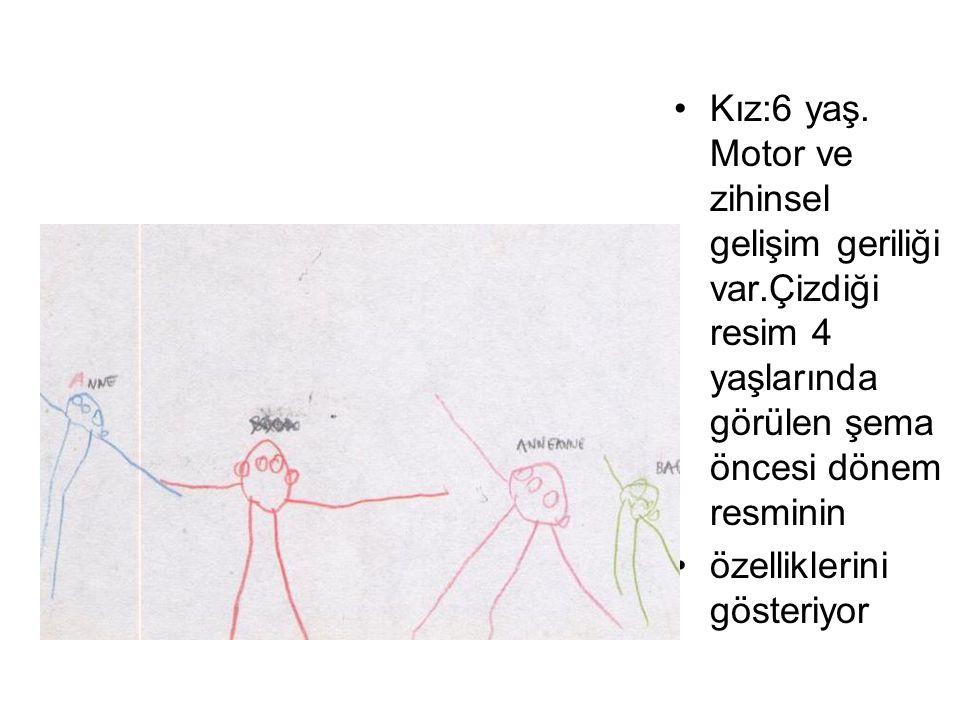 Kız:6 yaş. Motor ve zihinsel gelişim geriliği var.Çizdiği resim 4 yaşlarında görülen şema öncesi dönem resminin özelliklerini gösteriyor