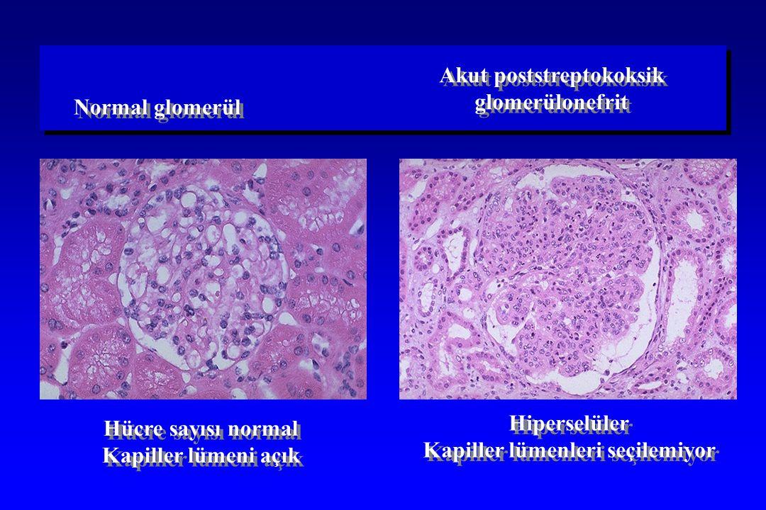 Hücre sayısı normal Kapiller lümeni açık Hücre sayısı normal Kapiller lümeni açık Hiperselüler Kapiller lümenleri seçilemiyor Hiperselüler Kapiller lü