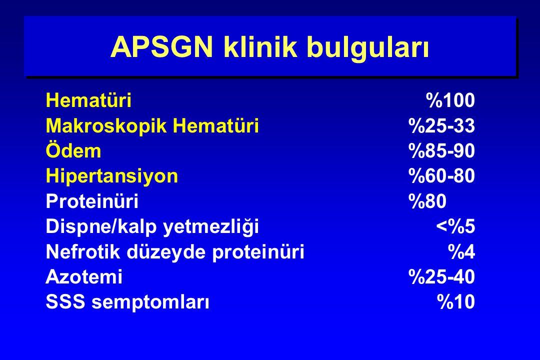 APSGN klinik bulguları Hematüri%100 Makroskopik Hematüri%25-33 Ödem%85-90 Hipertansiyon %60-80 Proteinüri %80 Dispne/kalp yetmezliği<%5 Nefrotik düzey