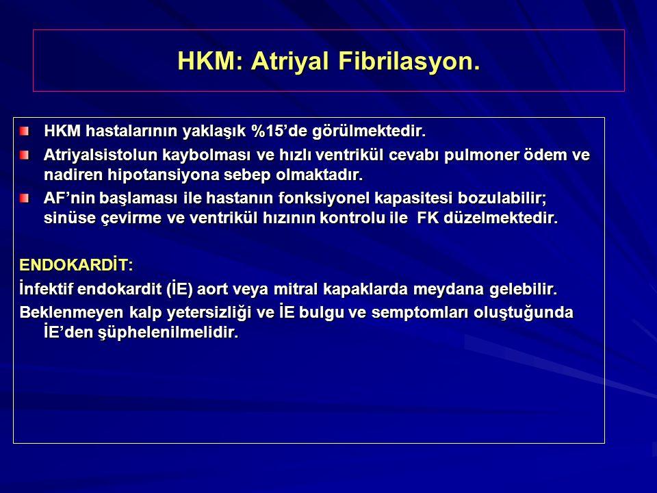 HKM: Atriyal Fibrilasyon. HKM hastalarının yaklaşık %15'de görülmektedir. Atriyalsistolun kaybolması ve hızlı ventrikül cevabı pulmoner ödem ve nadire