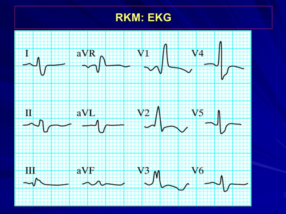 RKM: EKG