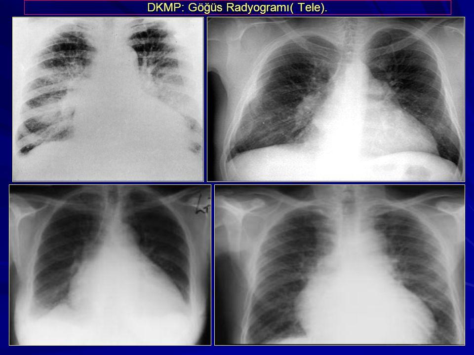 DKMP: Göğüs Radyogramı( Tele).
