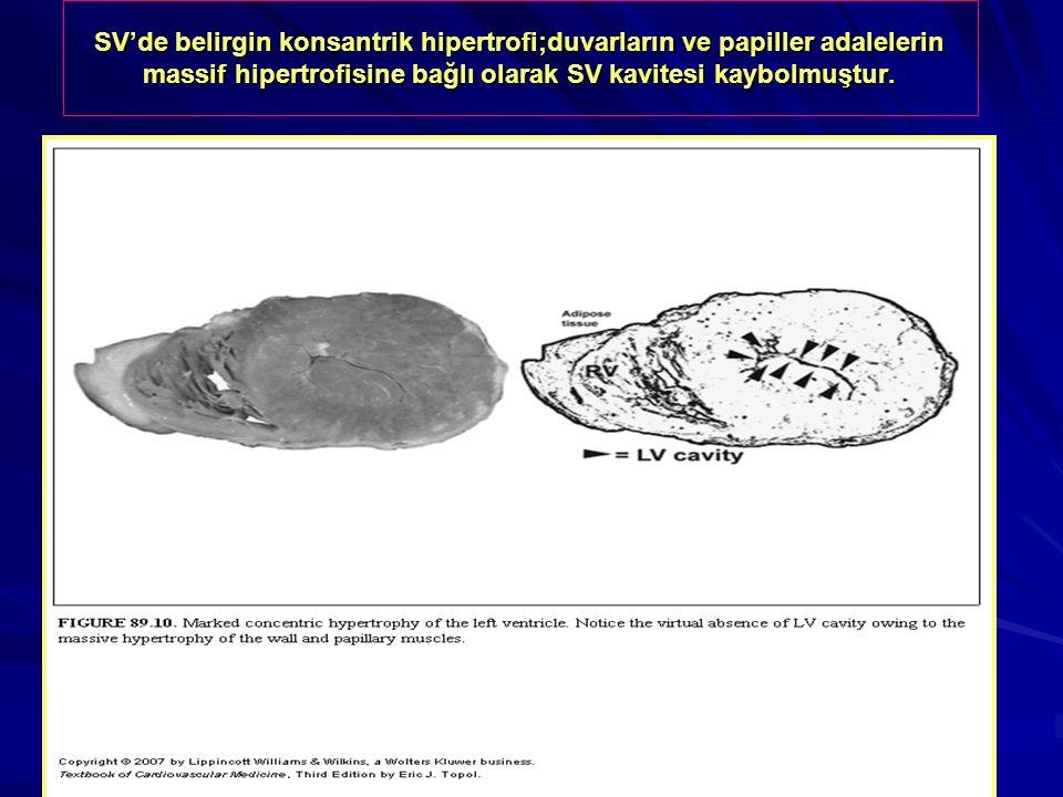 SV'de belirgin konsantrik hipertrofi;duvarların ve papiller adalelerin massif hipertrofisine bağlı olarak SV kavitesi kaybolmuştur.