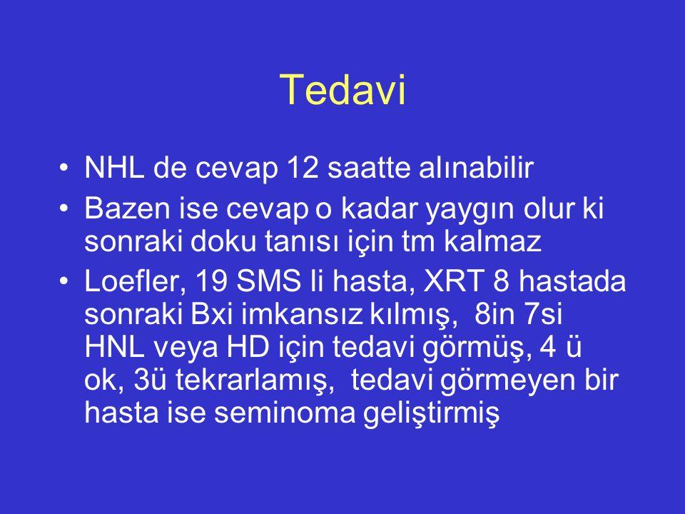 Tedavi NHL de cevap 12 saatte alınabilir Bazen ise cevap o kadar yaygın olur ki sonraki doku tanısı için tm kalmaz Loefler, 19 SMS li hasta, XRT 8 has