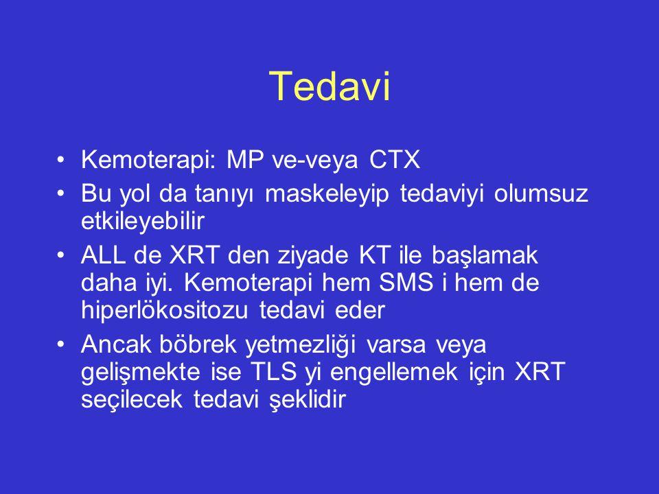 Tedavi Kemoterapi: MP ve-veya CTX Bu yol da tanıyı maskeleyip tedaviyi olumsuz etkileyebilir ALL de XRT den ziyade KT ile başlamak daha iyi. Kemoterap
