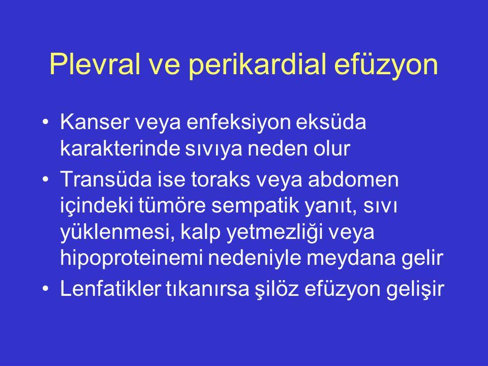 Plevral ve perikardial efüzyon Kanser veya enfeksiyon eksüda karakterinde sıvıya neden olur Transüda ise toraks veya abdomen içindeki tümöre sempatik