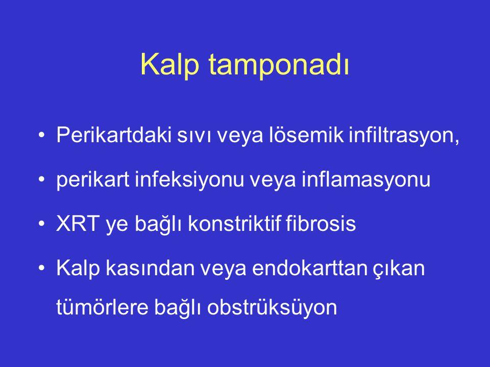 Kalp tamponadı Perikartdaki sıvı veya lösemik infiltrasyon, perikart infeksiyonu veya inflamasyonu XRT ye bağlı konstriktif fibrosis Kalp kasından vey