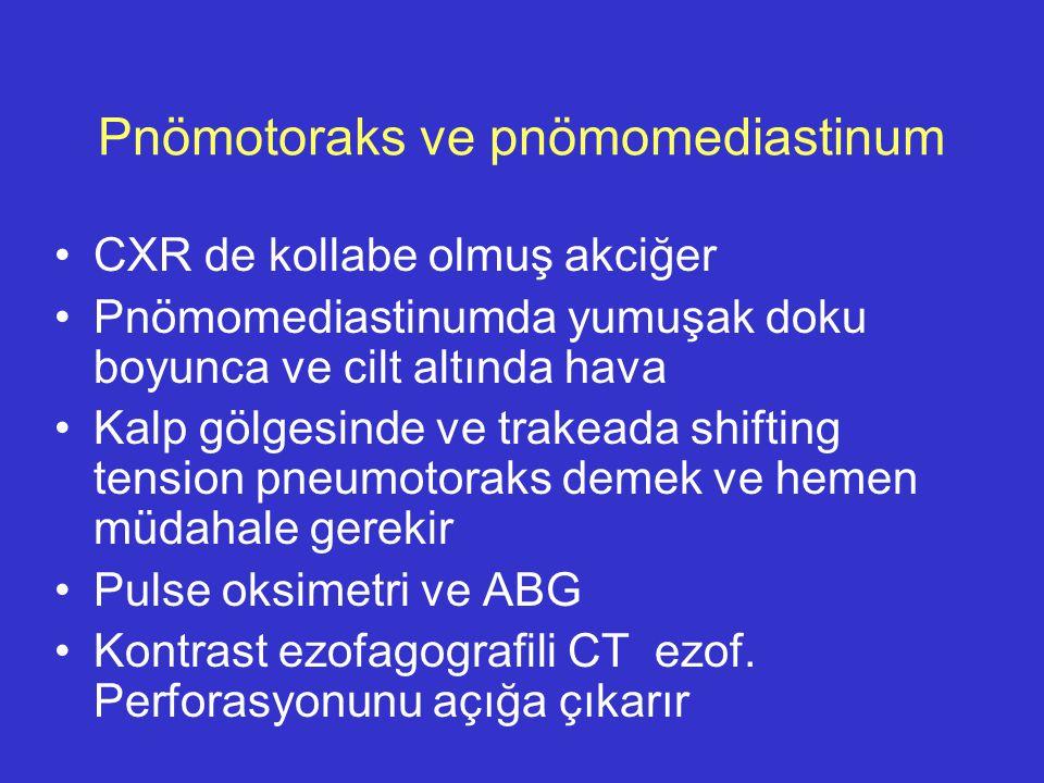 Pnömotoraks ve pnömomediastinum CXR de kollabe olmuş akciğer Pnömomediastinumda yumuşak doku boyunca ve cilt altında hava Kalp gölgesinde ve trakeada