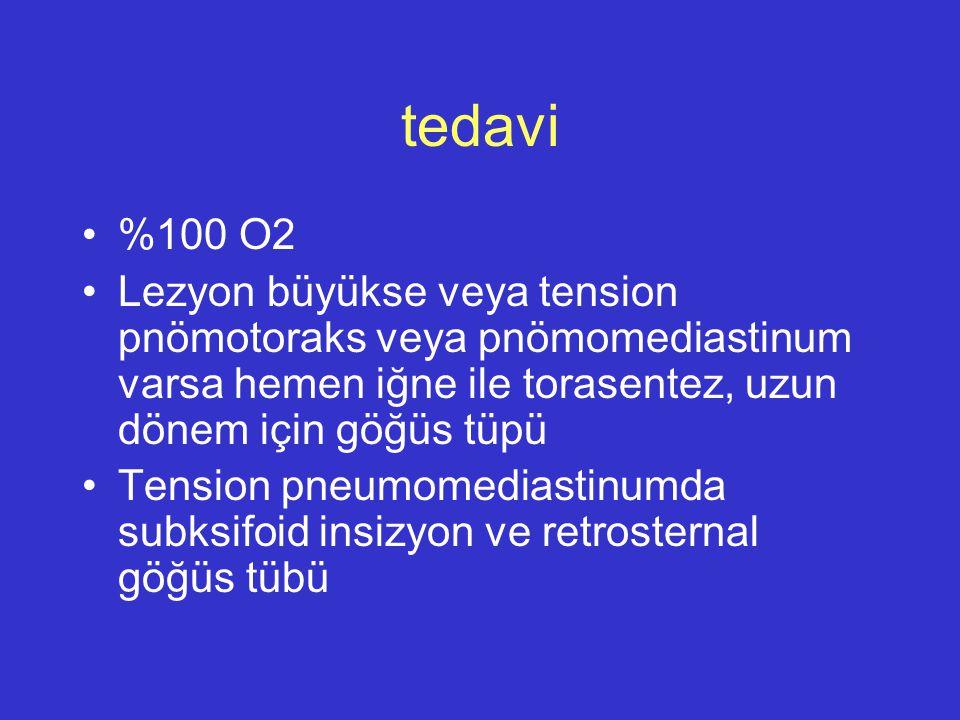 tedavi %100 O2 Lezyon büyükse veya tension pnömotoraks veya pnömomediastinum varsa hemen iğne ile torasentez, uzun dönem için göğüs tüpü Tension pneum