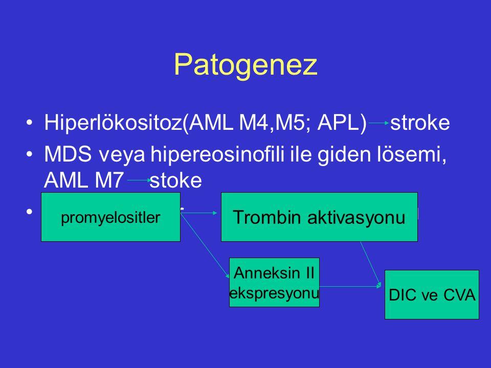 Patogenez Hiperlökositoz(AML M4,M5; APL) stroke MDS veya hipereosinofili ile giden lösemi, AML M7 stoke Promyelositler trombin aktivasyonu Trombin akt
