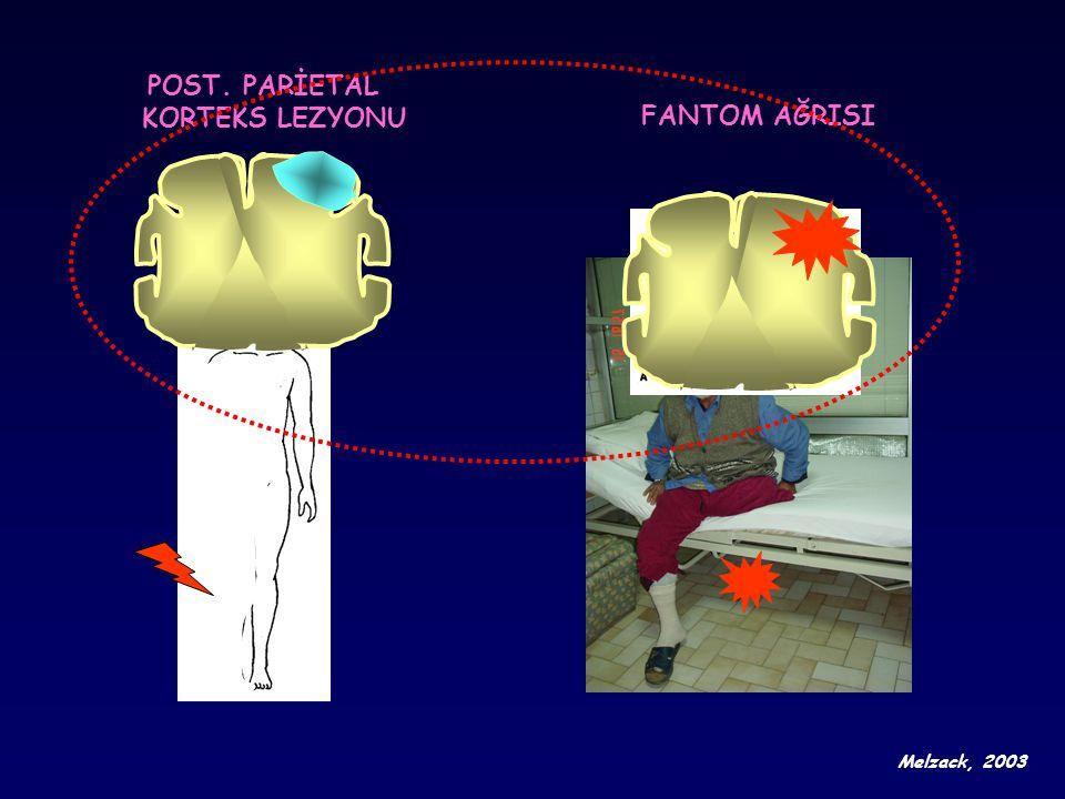 POST. PARİETAL KORTEKS LEZYONU FANTOM AĞRISI Melzack, 2003