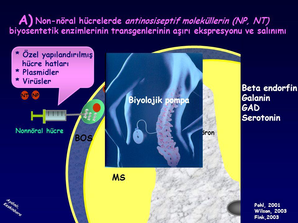 İstenmeyen etkileri olan başka maddeler RED reaksiyonu ÖZEL YAPILANDIRILMIŞ HÜCRE HATLARI KROMMAFFİN HÜCRE GABA Galanin Serotonin Met-enkafalin NON-NÖRAL HÜCRE TRANSPLANTASYONU GABA Galanin Serotonin Met-enkafalin 1981 NMDA-R Wind-up + Wilson 1981, Fink 2003, Yeomans 2002