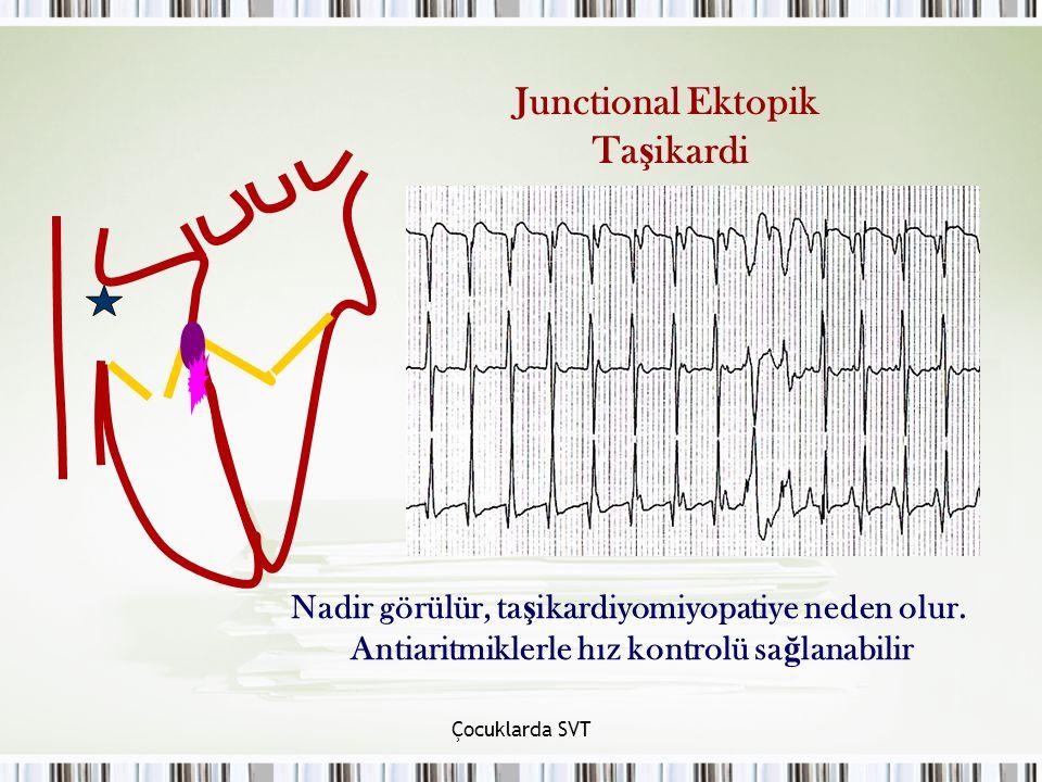 Çocuklarda SVT Junctional Ektopik Ta ş ikardi Nadir görülür, ta ş ikardiyomiyopatiye neden olur. Antiaritmiklerle hız kontrolü sa ğ lanabilir
