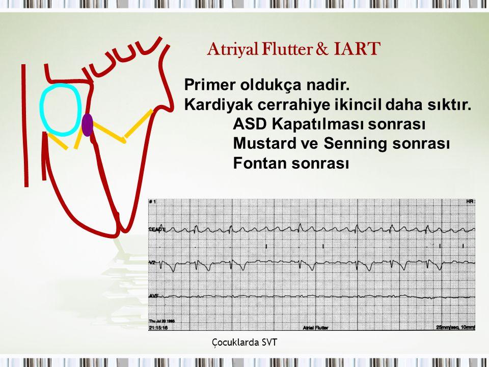 Çocuklarda SVT Atriyal Flutter & IART Primer oldukça nadir. Kardiyak cerrahiye ikincil daha sıktır. ASD Kapatılması sonrası Mustard ve Senning sonrası