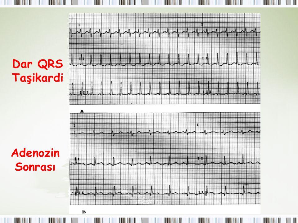 Çocuklarda SVT Dar QRS Taşikardi Adenozin Sonrası
