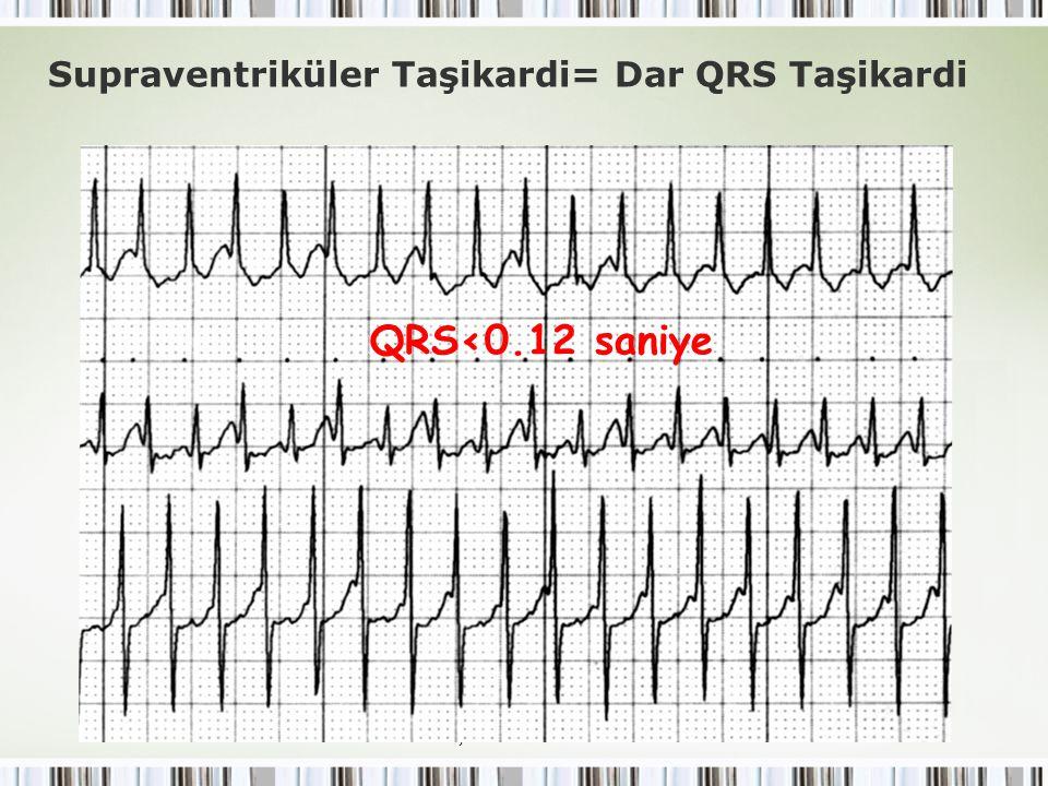 Çocuklarda SVT Supraventriküler Taşikardi= Dar QRS Taşikardi QRS<0.12 saniye