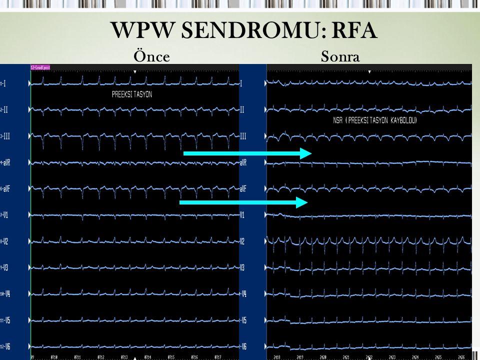 Çocuklarda SVT WPW SENDROMU: RFA ÖnceSonra