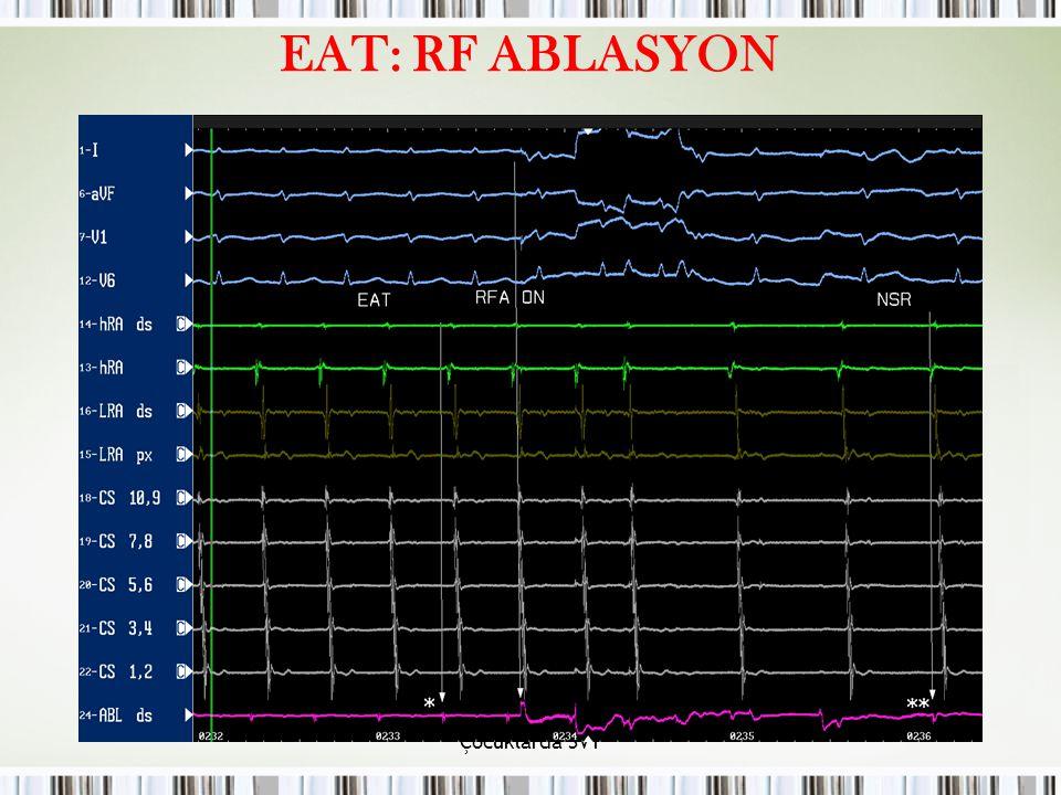 Çocuklarda SVT EAT: RF ABLASYON