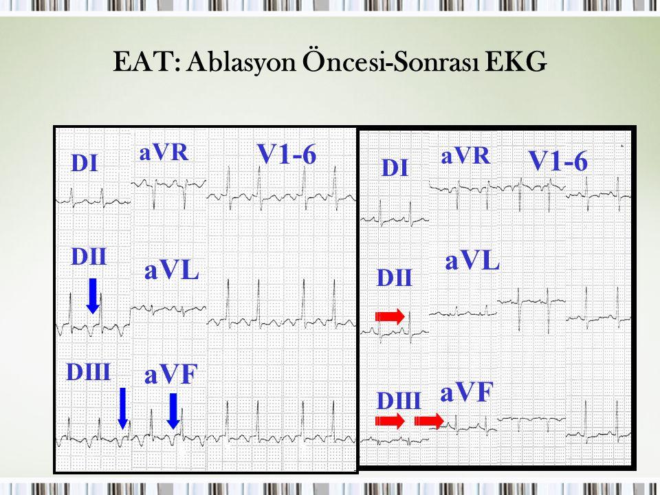 Çocuklarda SVT EAT: Ablasyon Öncesi-Sonrası EKG DI DII DIII aVR aVL aVF V1-6 DI DII DIII aVR aVL aVF V1-6