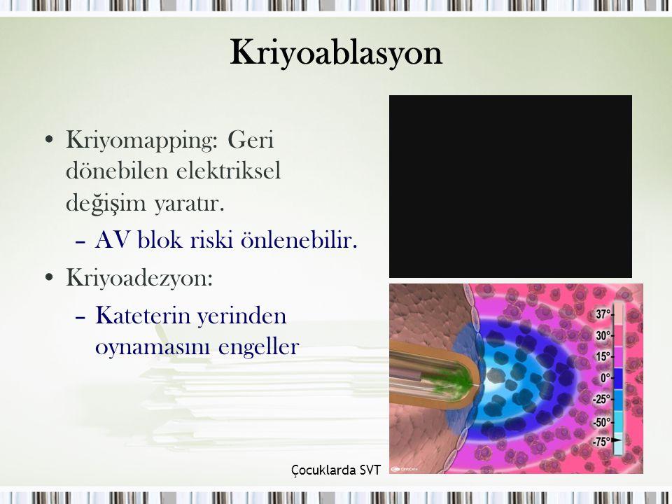 Çocuklarda SVT Kriyoablasyon Kriyomapping: Geri dönebilen elektriksel de ğ i ş im yaratır.