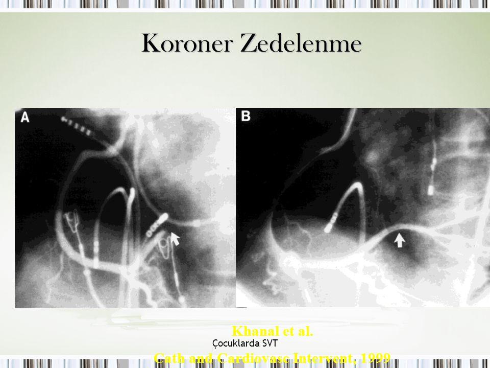 Çocuklarda SVT Koroner Zedelenme Khanal et al. Cath and Cardiovasc Intervent, 1999