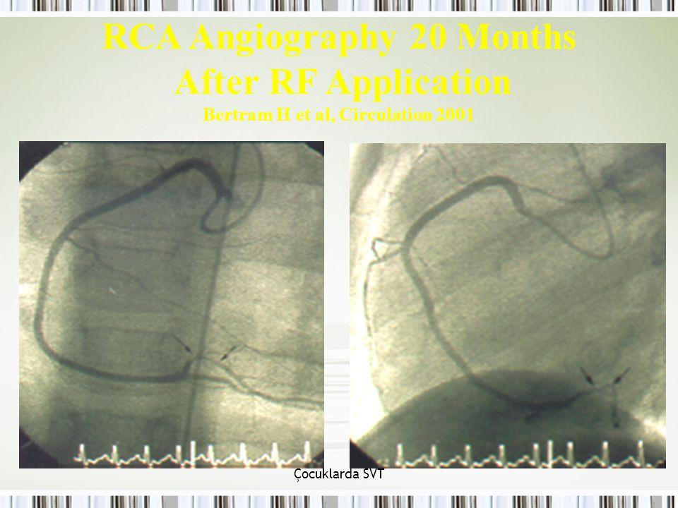 Çocuklarda SVT RCA Angiography 20 Months After RF Application Bertram H et al, Circulation 2001