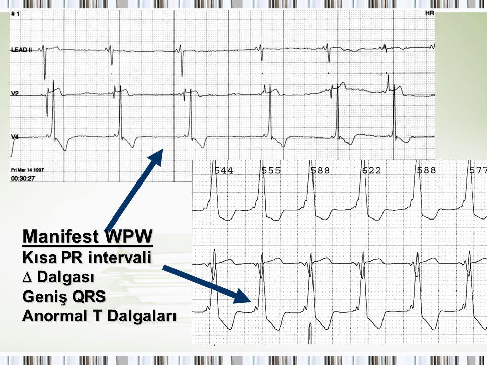Çocuklarda SVT Manifest WPW Kısa PR intervali  Dalgası Geniş QRS Anormal T Dalgaları
