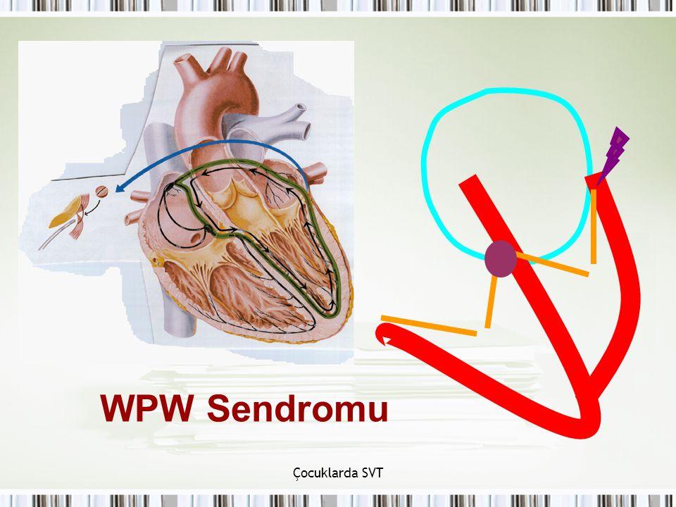 Çocuklarda SVT WPW Sendromu