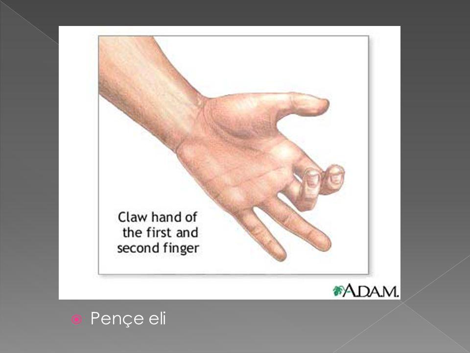  Pençe eli