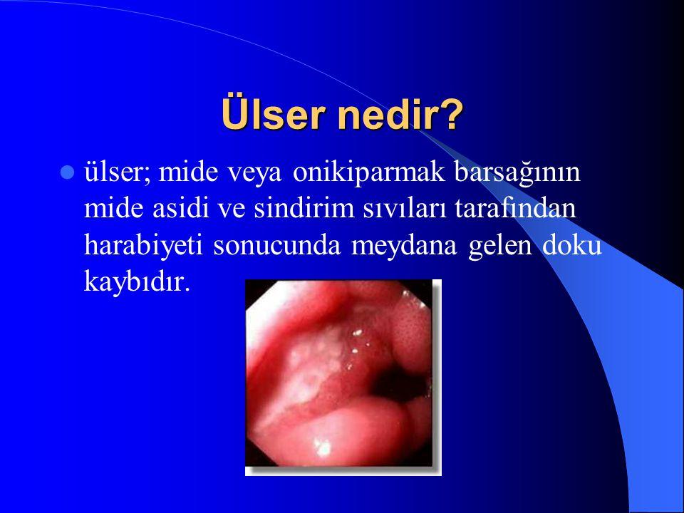 Ülser nedir? ülser; mide veya onikiparmak barsağının mide asidi ve sindirim sıvıları tarafından harabiyeti sonucunda meydana gelen doku kaybıdır.