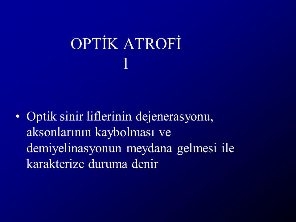 OPTİK ATROFİ 1 Optik sinir liflerinin dejenerasyonu, aksonlarının kaybolması ve demiyelinasyonun meydana gelmesi ile karakterize duruma denir