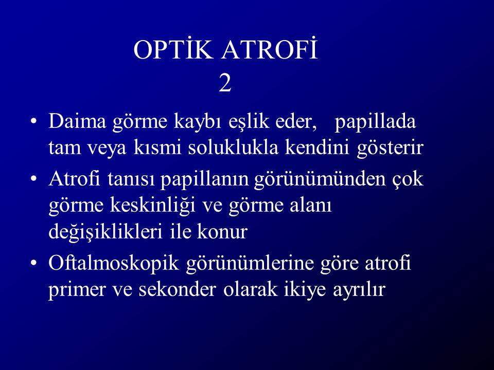 OPTİK ATROFİ 2 Daima görme kaybı eşlik eder, papillada tam veya kısmi soluklukla kendini gösterir Atrofi tanısı papillanın görünümünden çok görme kesk