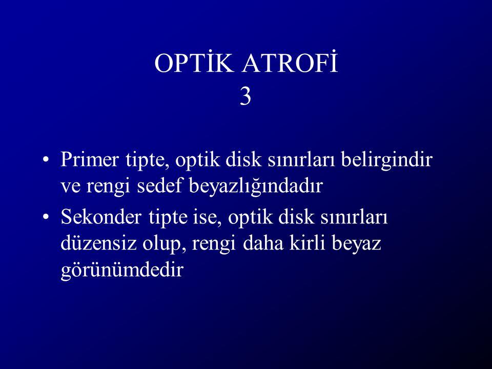 OPTİK ATROFİ 3 Primer tipte, optik disk sınırları belirgindir ve rengi sedef beyazlığındadır Sekonder tipte ise, optik disk sınırları düzensiz olup, r