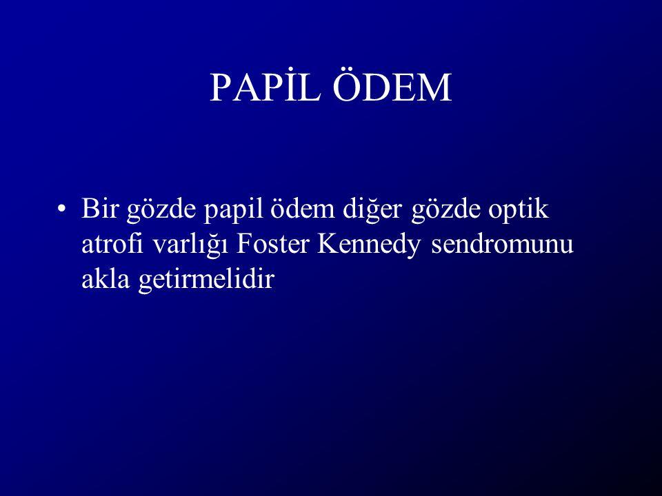 PAPİL ÖDEM Bir gözde papil ödem diğer gözde optik atrofi varlığı Foster Kennedy sendromunu akla getirmelidir