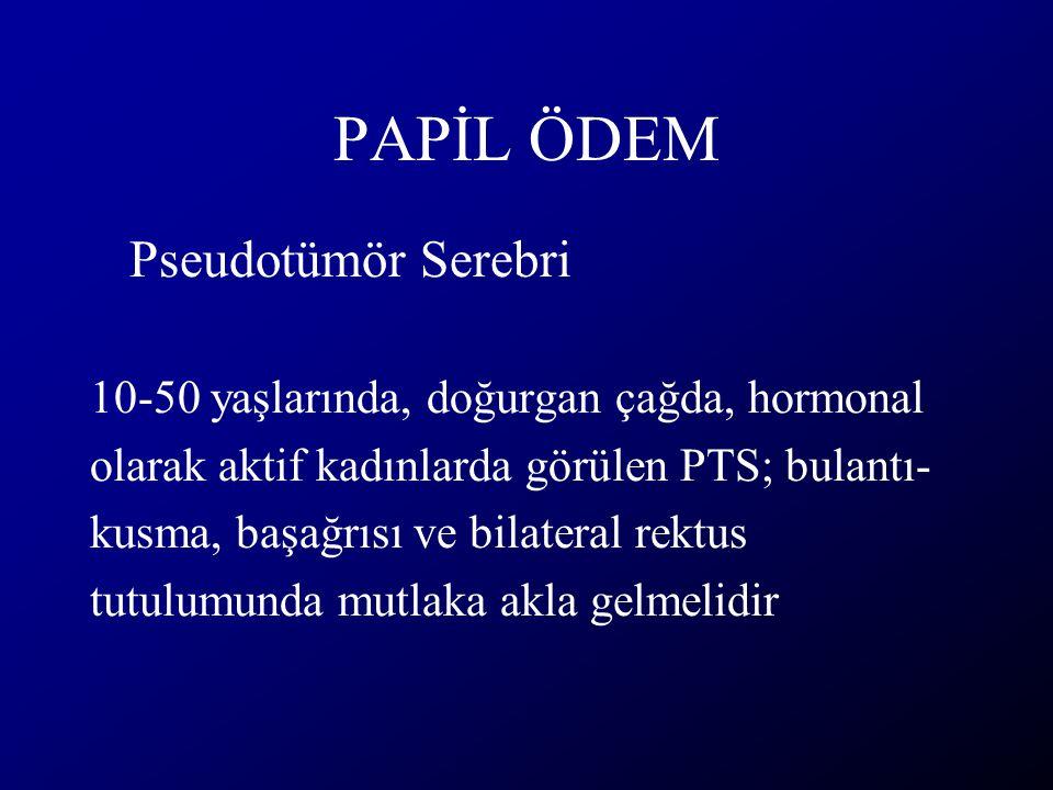 PAPİL ÖDEM Pseudotümör Serebri 10-50 yaşlarında, doğurgan çağda, hormonal olarak aktif kadınlarda görülen PTS; bulantı- kusma, başağrısı ve bilateral