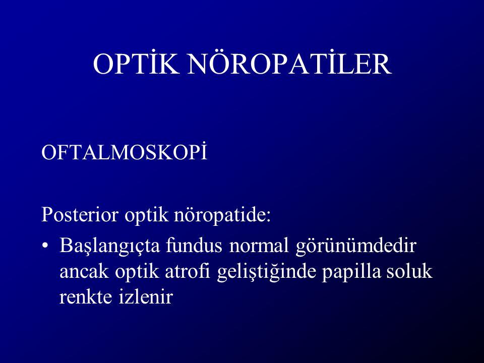 OPTİK NÖROPATİLER OFTALMOSKOPİ Posterior optik nöropatide: Başlangıçta fundus normal görünümdedir ancak optik atrofi geliştiğinde papilla soluk renkte