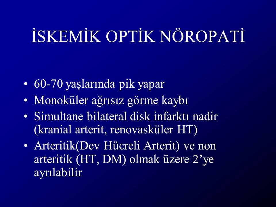 İSKEMİK OPTİK NÖROPATİ 60-70 yaşlarında pik yapar Monoküler ağrısız görme kaybı Simultane bilateral disk infarktı nadir (kranial arterit, renovasküler