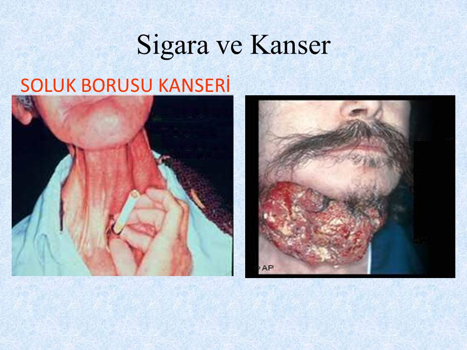 Sigara ve Kanser SOLUK BORUSU KANSERİ