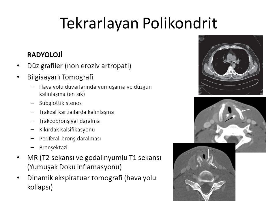 Tekrarlayan Polikondrit RADYOLOJİ Düz grafiler (non eroziv artropati) Bilgisayarlı Tomografi – Hava yolu duvarlarında yumuşama ve düzgün kalınlaşma (e
